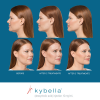 Kybella Before and After 5