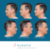 Kybella Before and After 6
