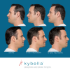 Kybella Before and After 7